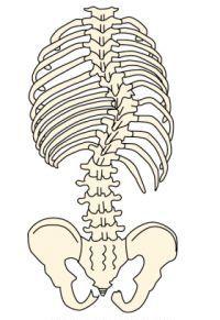 側弯症の治療-装具の効果と費用。申請するともらえる補助