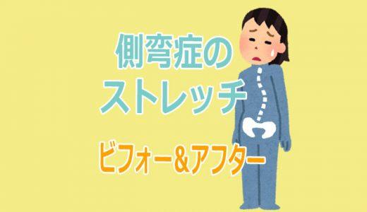 脊柱側弯症のストレッチのコツとビフォー&アフター【動画】