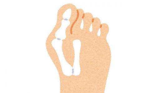 外反母趾の治し方-自分でできるストレッチ